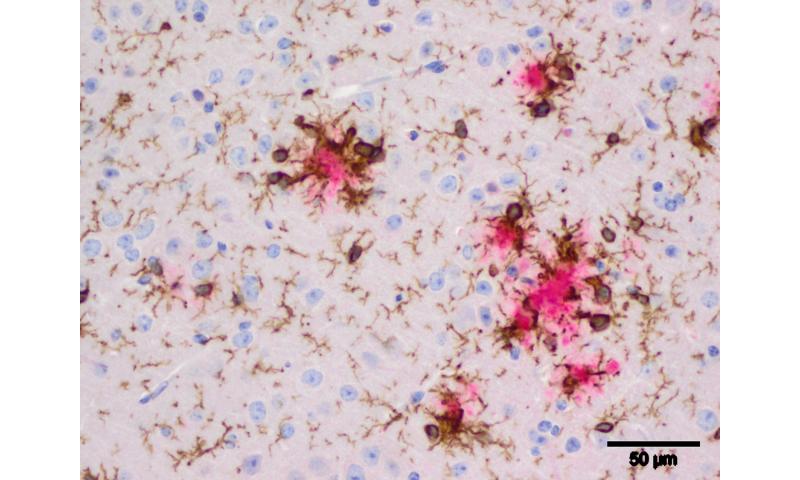 Newly discovered gene variants link innate immunity and Alzheimer's disease