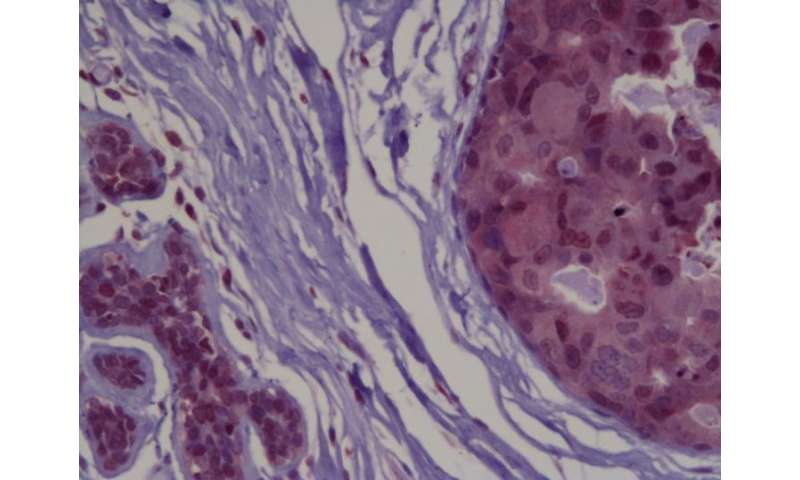 Study discovers proteins which suppress the growth of breast cancer tumors