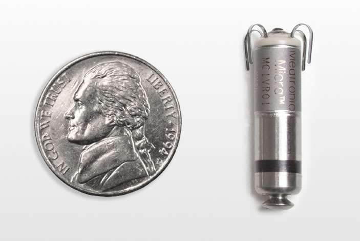 World's smallest, leadless pacemaker yields positive results