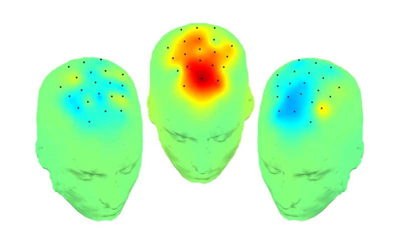 Low frequency brain stimulation improves cognition in Parkinson's disease