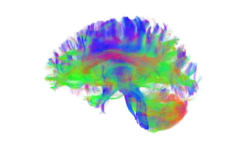 Penn Medicine researchers identify brain network organization changes