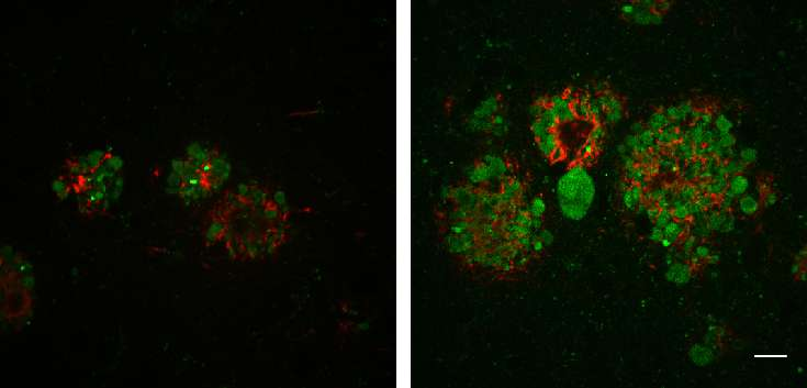 Scientists reveal role for lysosome transport in Alzheimer's disease progression