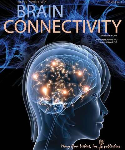 Researchers report altered brain functional connectivity in autism spectrum disorder
