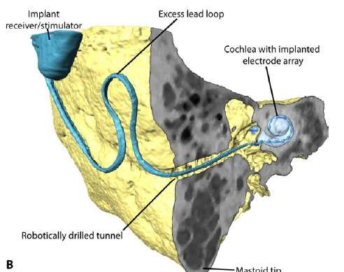 Researchers develop high-precision surgical robot for cochlear implantation