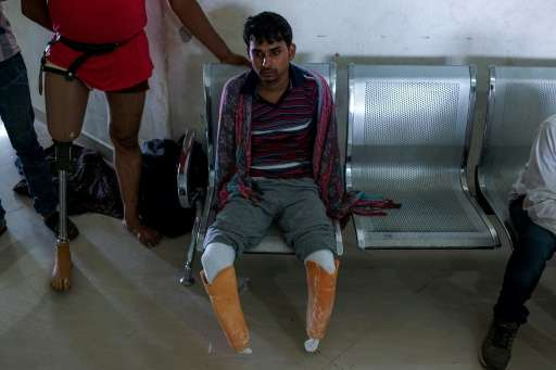 In this photograph taken on June 13, 2017, 22-year-old electrician Vishnu Kumar, who lost his legs and hands in an accident, wai