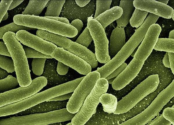 Model predicts how E. coli bacteria adapt under stress