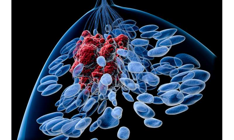 Researchers gain insight into breast cancer drug resistance