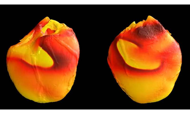 Researchers find new source of dangerous electrical instability in the heart