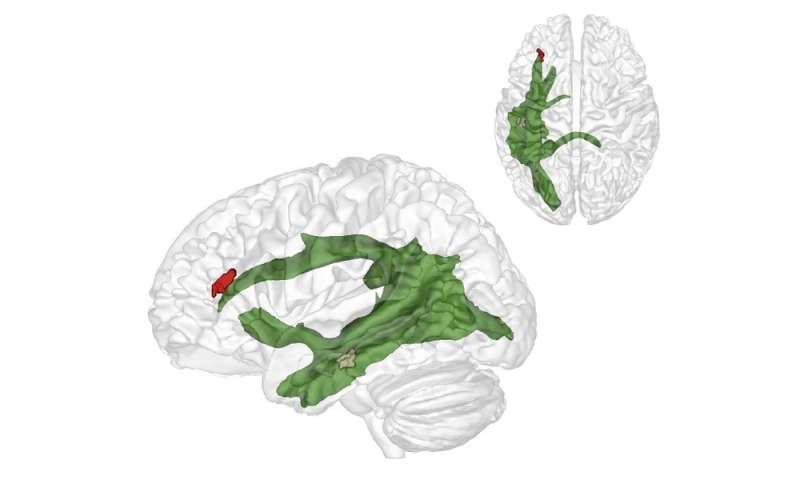 Researchers discover brain structure that helps us to understand what others think