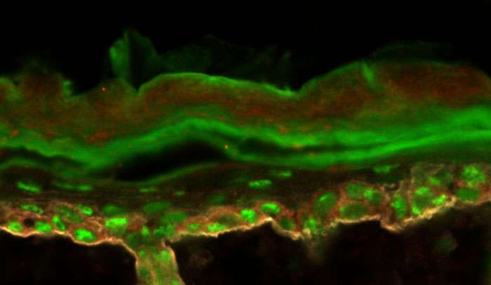 Researchers explore how protein production gets distorted in skin cancer