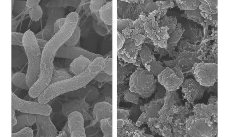 Shape-shifting agent targets harmful bacteria in the stomach