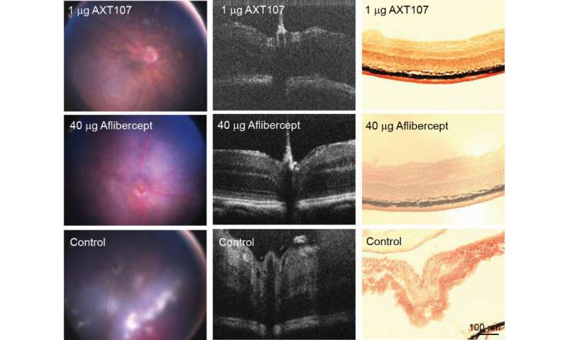 Experimental drug shows promise for sight-stealing eye condition