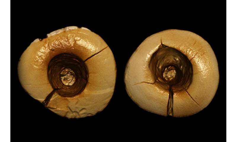 Ancient teeth offer evidence of Ice Age dentistry