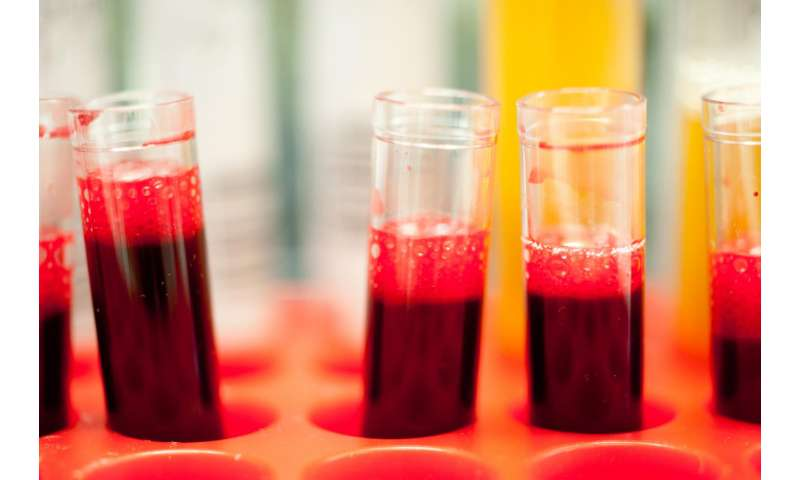 New blood test predicts who will benefit from targeted prostate cancer treatments