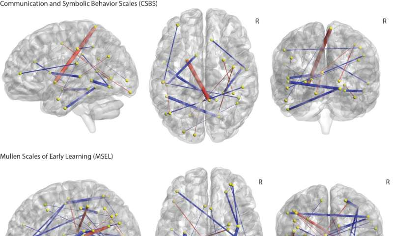 Predicting autism: Study links infant brain connections to diagnoses at age 2