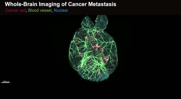 Watch cancer spread in a mouse