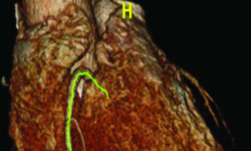 New way to see artery damage before heart disease sets in