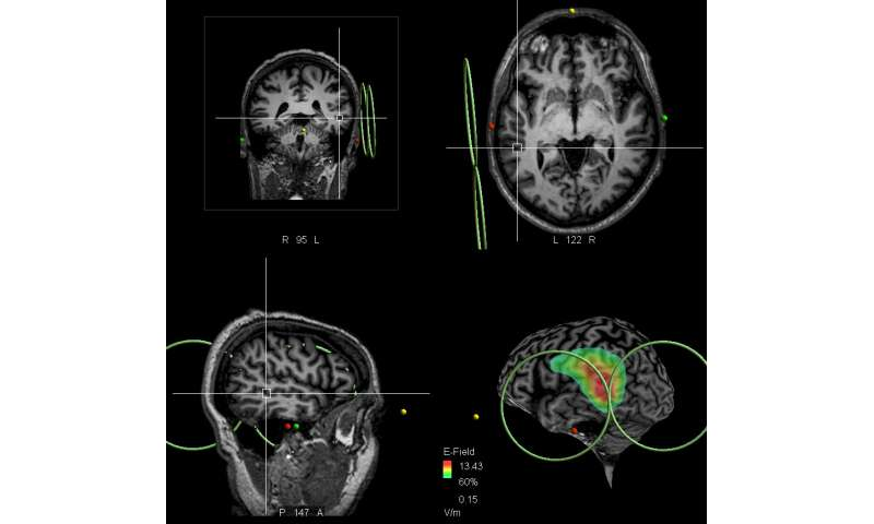 Scientists discover and target brain area in patients with schizophrenia who 'hear voices'