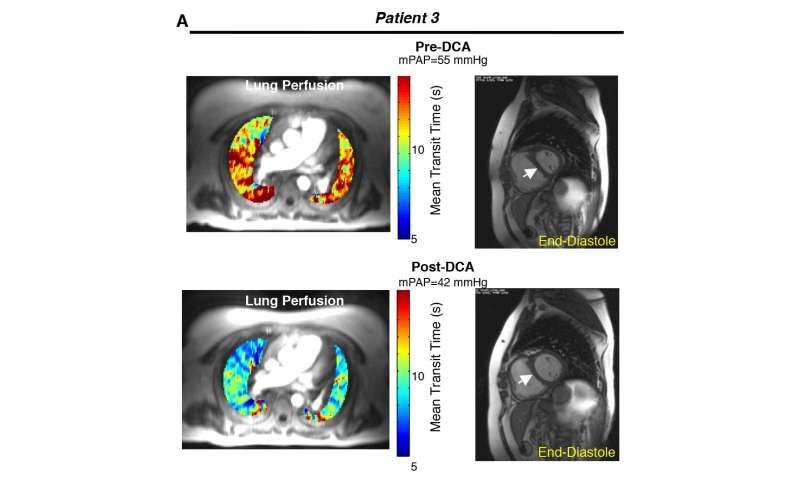 Targeting mitochondria in pulmonary hypertension