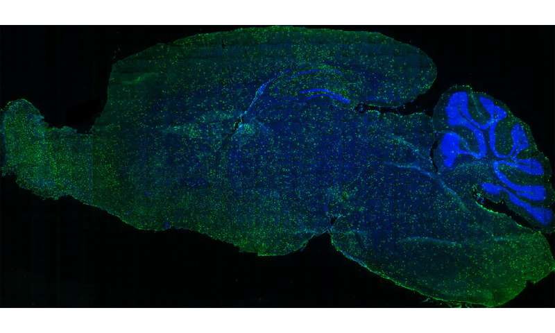 A new gene therapy transplantation technique could improve treatment of neurodegenerative diseases