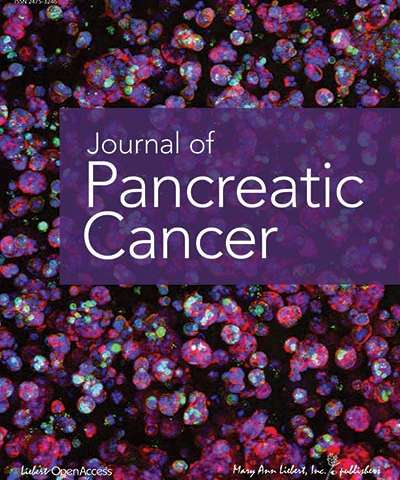Researchers identify prognostic indicators of survival following pancreatic tumor removal