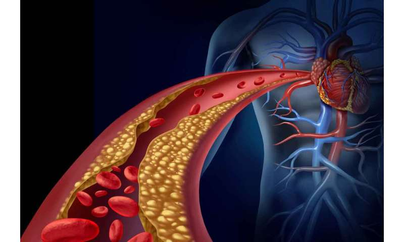Study reveals ways to improve outcomes, reduce costs for common heart procedure