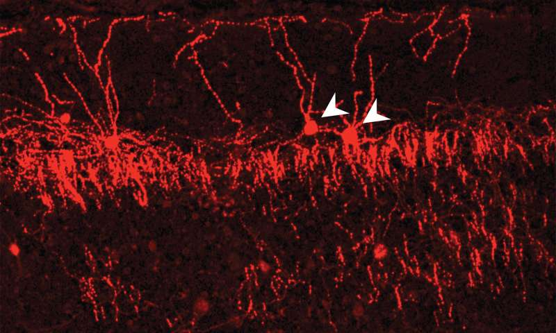 Research reveals 'exquisite selectivity' of neuronal wiring in the cerebral cortex