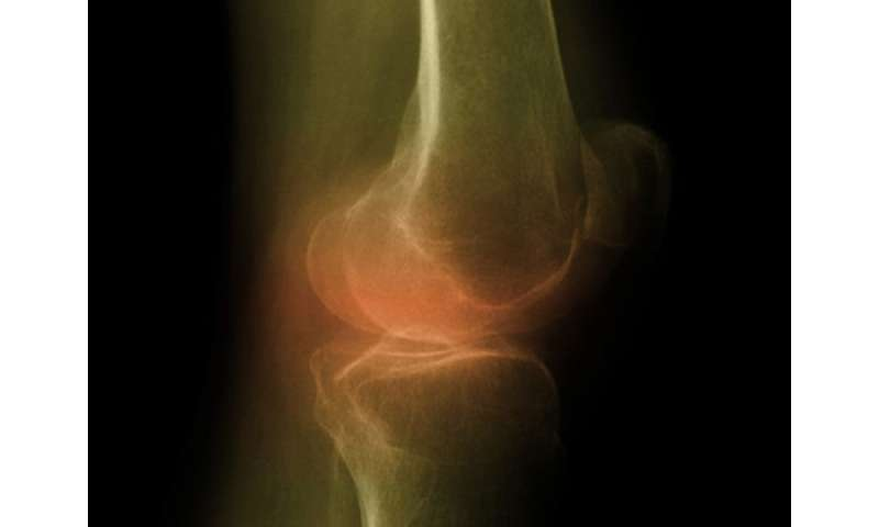 Active synovitis with osteitis predicts residual synovitis in RA