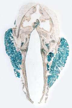 A culprit of thyroid diseases