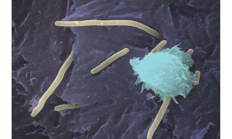 Aggressive UTI bacteria hijack copper, feed off it