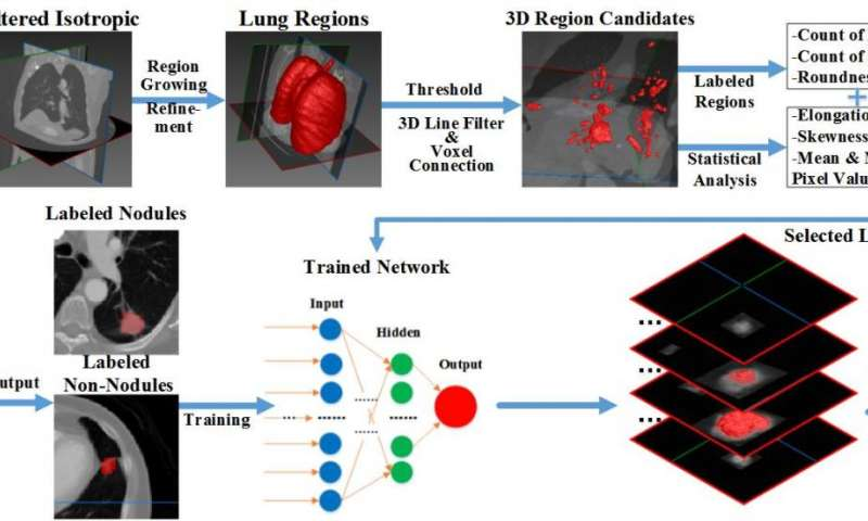 AI helps to fight against lung cancer
