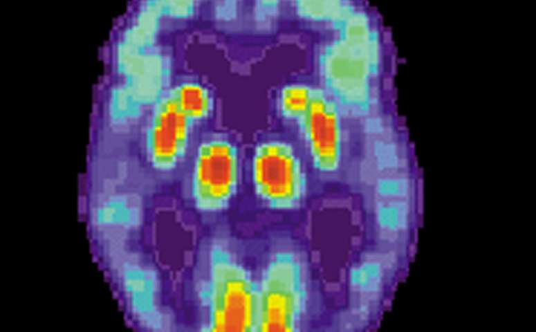 Study Pinpoints Autism Linked Protein >> Study Pinpoints Alzheimer S Plaque Emergence Early And Deep