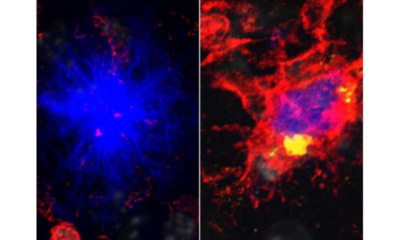Alzheimer's risk linked to energy shortage in brain's immune cells