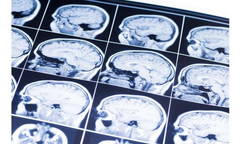 A non-invasive method to detect Alzheimer's disease