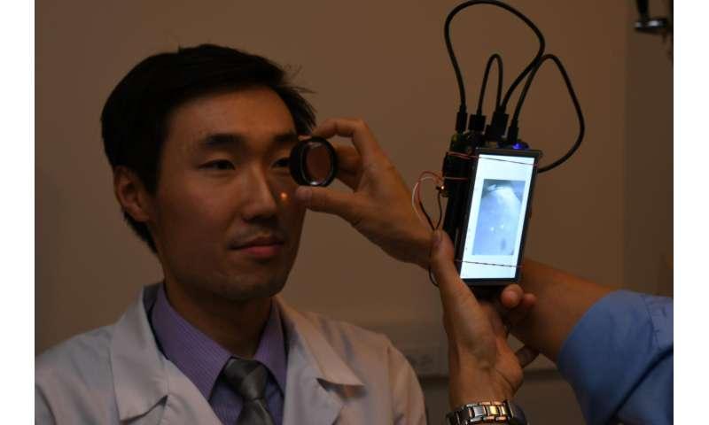 A pocket-sized retina camera, no dilating required