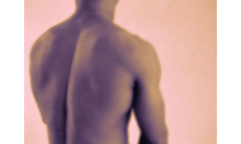 ASCO: single radiation tx enough for spinal pain in cancer mets