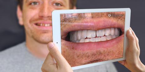 A sweeter smile through augmented reality