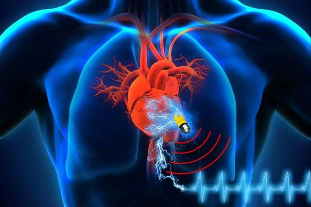 Battery-free implantable medical device draws energy directly from human body