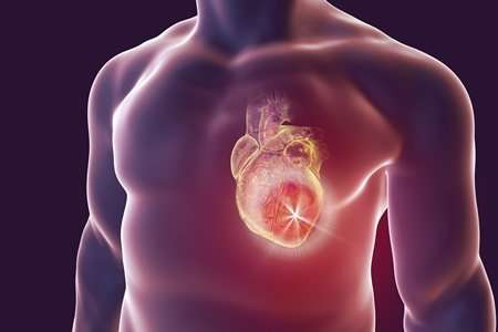 Blood cancer gene could be key to preventing heart failure