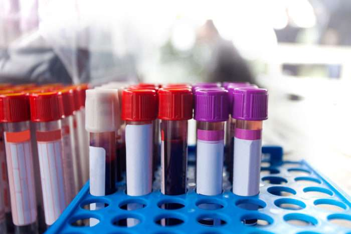 Blood test identifies key Alzheimer's marker