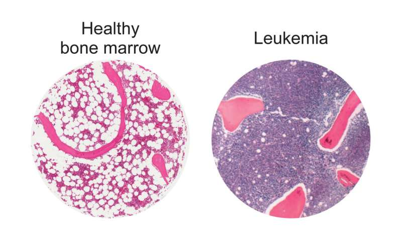 Bolstering fat cells offers potential new leukemia treatment