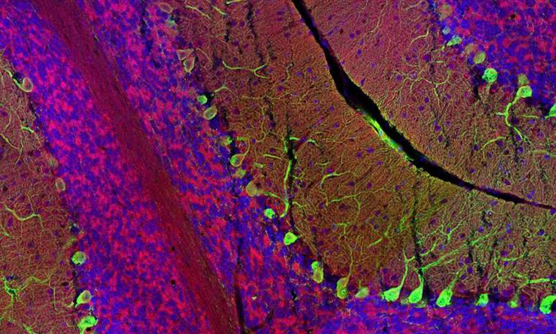 Brain cells mobilize sugar in response to increased activity