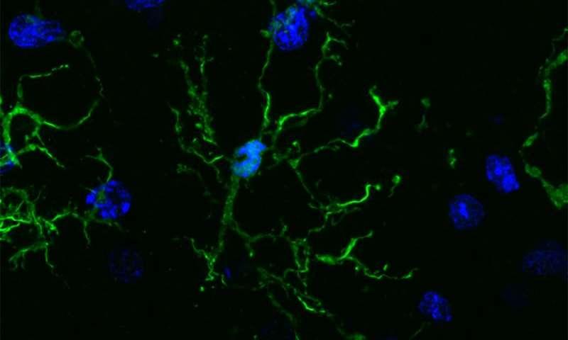Brain's immune cells linked to Alzheimer's, Parkinson's, schizophrenia