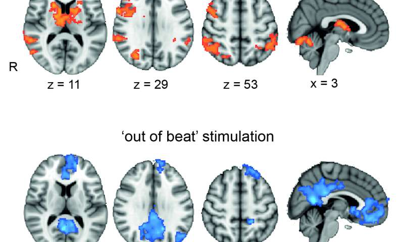 Buzzing the brain with electricity can boost working memory