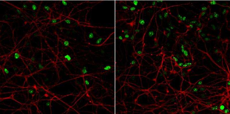 Cell model of the brain provides new knowledge on developmental disease