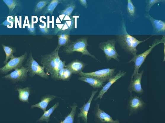 Cellular imaging technique reveal functions of uncharacterized genes or disease-associated gene variants