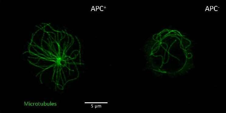 Apc Protein Affects Colon Cancer Immunity By Preventing Pre Cancerous Inflammation
