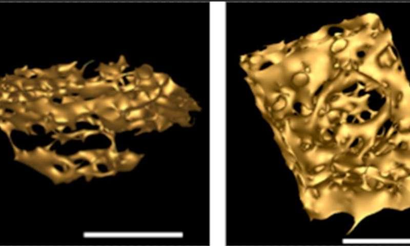 Complex bacterium writes new evolutionary story