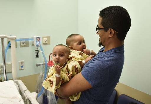 Conjoined twins separated after undergoing 21-hour operation