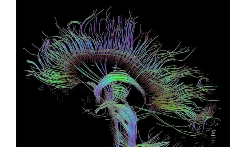 Creative people have better-connected brains, research finds